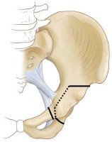 Periarticular realignment osteotomy