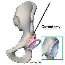 Acetabular rim osteotomy and labral reattachment