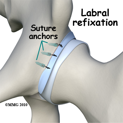 Labral refixation